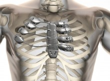 implante 3D